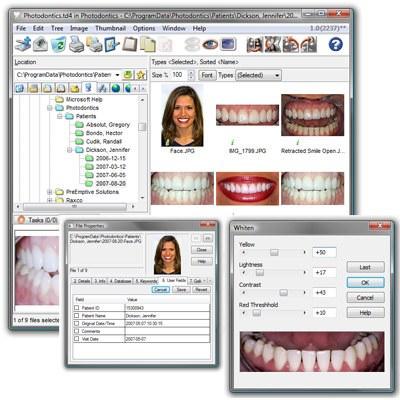 Photodontics Pro v1.0 B2240